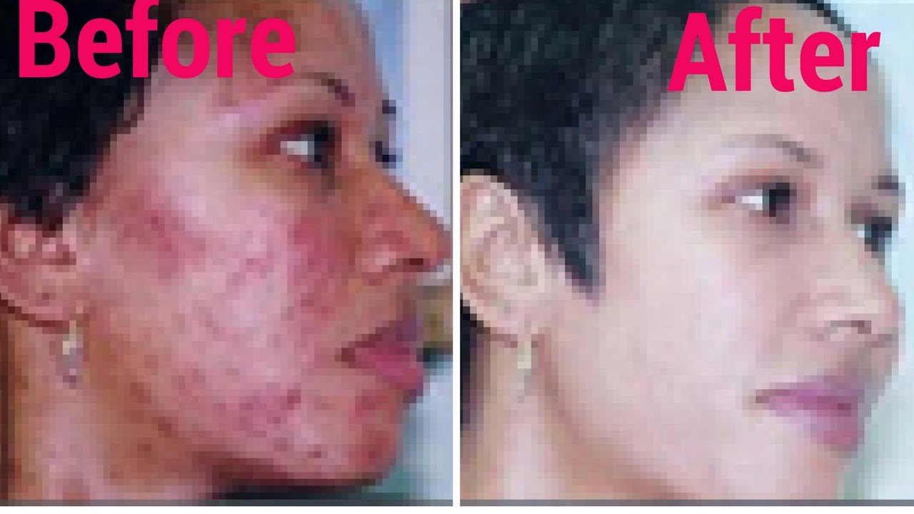 How To Treat Acne Naturally In 30 Days At Home Acne Treatment Acne No More Youtube