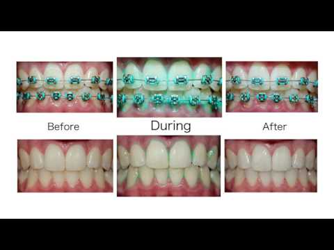 PLAQUE HD - ORAL SCIENCE || Step By Step Instructional Video