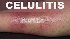 como curar la celulitis infecciosa rapidamente