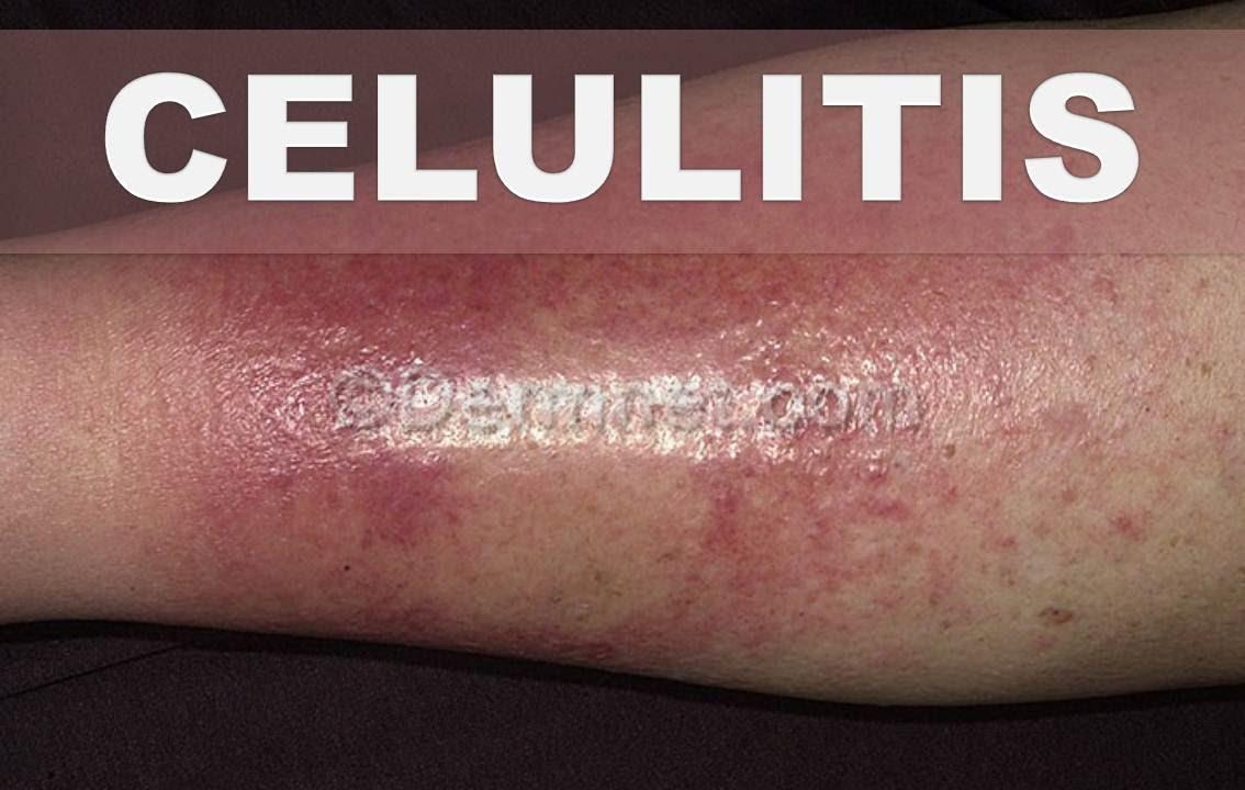 Una en celulitis la piel es que