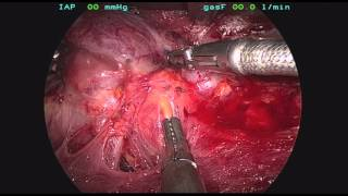 Endoscopic total thyroidectomy with node dissection for papillary thyroid cancer