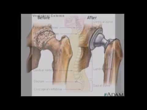 Titanium Implants- Nickel MCV