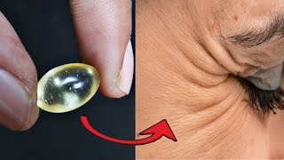 "How to remove ""wrinkles"" How can I get rid of wrinkles under the eyes in one day at home"