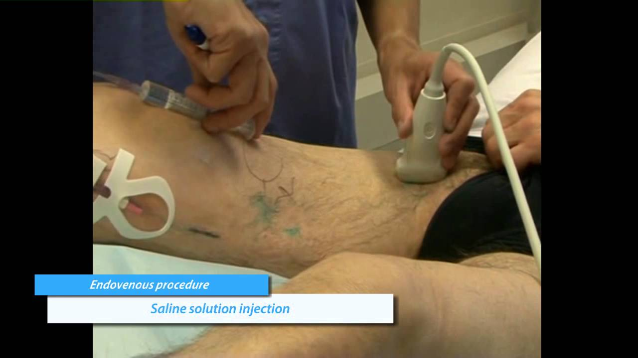 Varicose vein treatment by foam injection with a short ...