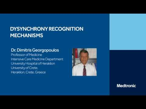 PAV+ Dyssynchrony Recognition Mechanisms: Video 5