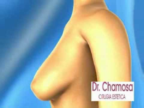Reduccion de mamas. (Mamoplastia) Clínica Doctor Chamosa (Madrid)