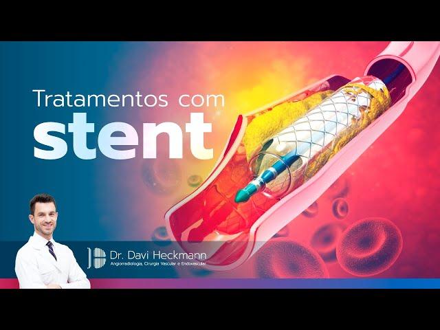Tratamentos com stent | Dr. Davi Heckmann