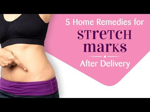 5 Effective Home Remedies For Pregnancy Stretch Marks Youtube