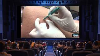 just a day in the life of dr pimple popper dermdays