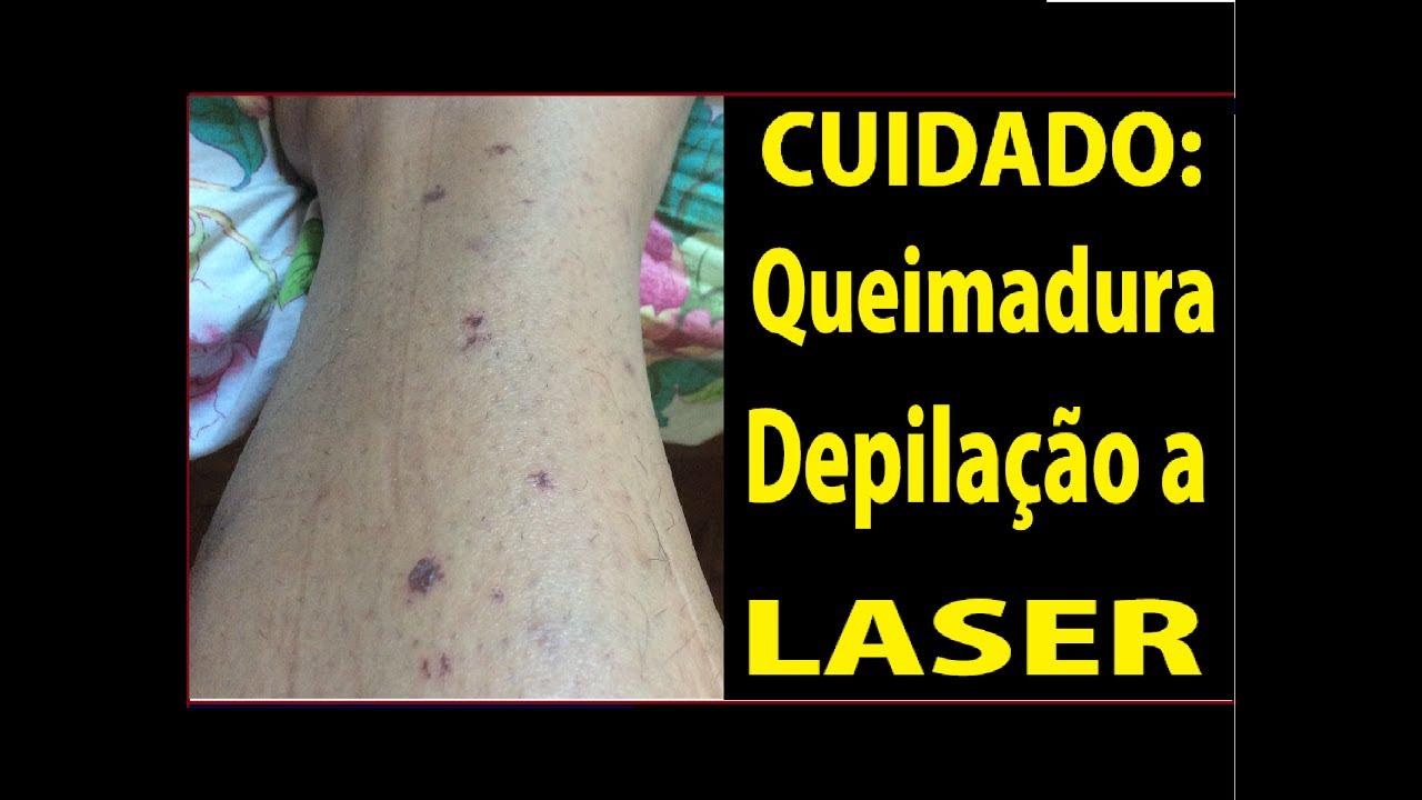 Conhecido Queimadura na depilação a laser - YouTube BR26