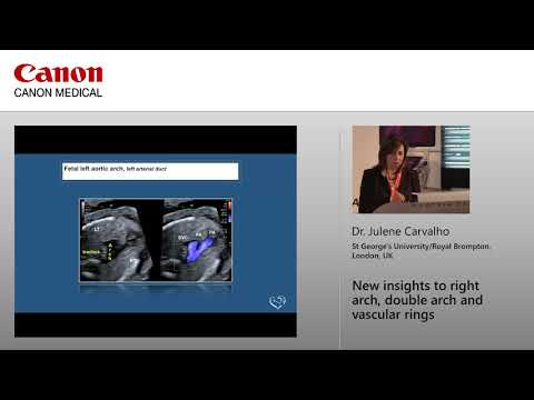 Dr Julene Carvalho - New Insights to Right Arch, Double Arch and Vascular Rings