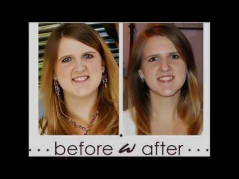 How to lose weight in your face youtube how to lose weight in your face ccuart Image collections