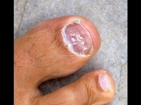 Toenail Fungus Treatment – Home Remedies For Toenail Fungus Know to Work Quickly