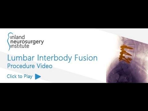 Lumbar Interbody Fusion