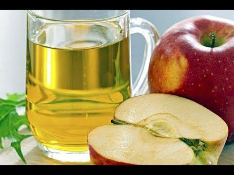 Лечение яблочным уксусом суставов коленный сустав капсула