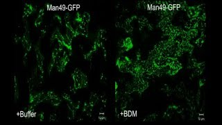 The ER-Membrane Transport System Is Critical for Intercellular Trafficking of the NSm Movement