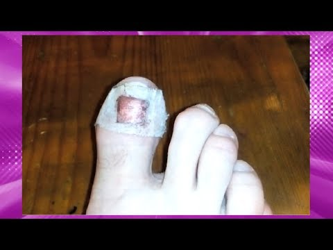 Травма ногтя на ноге