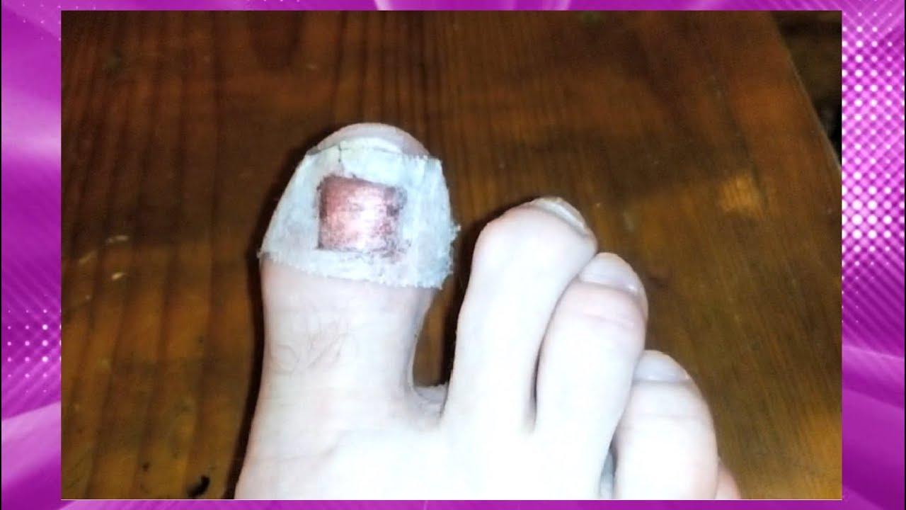 Травма ногтя на большом пальце ноги: что делать