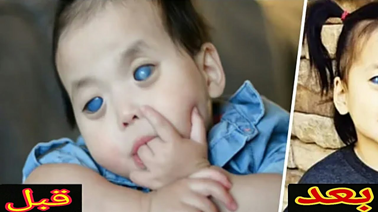 تخلى عنها أهلها لأنها بأعين زرقاء وغريبة  لكن شاهد كيف أصبحت بعد تبنيها  جعلتهم يتلهفون
