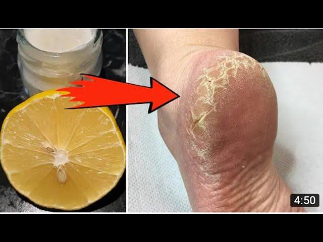 من اول استعمال ستختفي التشققات فورا وتحصلي على أقدام بيضاء وناعمة اقوى علاج لتشقق القدمين
