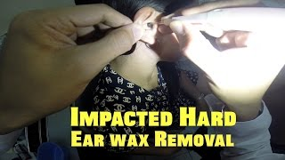 Impacted hard earwax removal