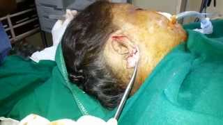 Cosmetic-Therapy Clinic: Video Clip of Facelift Surgery in Kolkata - Part 1 Thumbnail