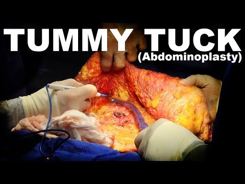 tummy-tuck-(abdominoplasty)---dr.-paul-ruff-|-west-end-plastic-surgery