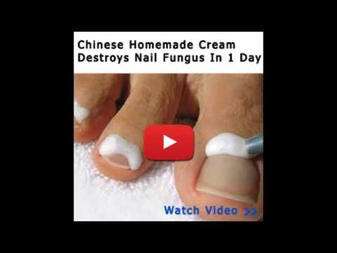 How To Get Rid Of Toenail Fungus In A Day – Can You Wear Nail Polish With Toenail Fungus?