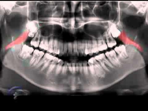 Anatomía en la radiografía panorámica I Anatomic panoramic image I ...