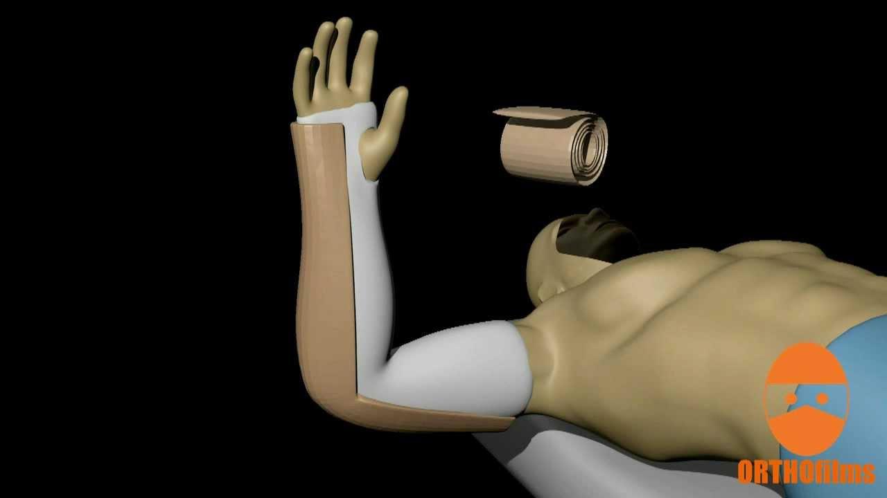 Long Arm Posterior Splint Youtube
