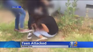 a short story on a brutal attack witnessed by teens An autistic teenager fears she will be disfigured for life after a brutal street attack emily o'reilly was repeatedly punched, kicked and emily o'reilly was repeatedly punched, kicked and stamped on by another teenage girl who only stopped when a witness told her: 'leave her now, i think she's dead.