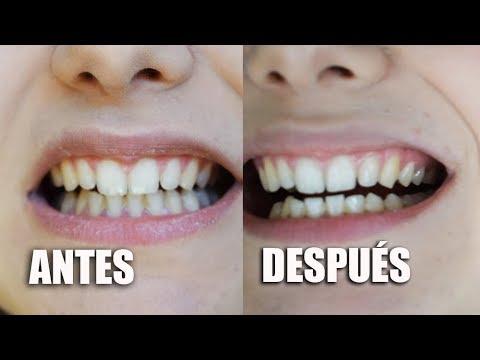 BLANQUEAMIENTO DENTAL en casa · ANTES y DESPUÉS · Bianco Smile