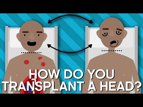 If You Had a Human Head Transplant, Would You Still Be You?