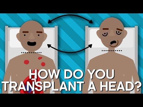 How Do You Transplant A Human Head? | Earth Lab