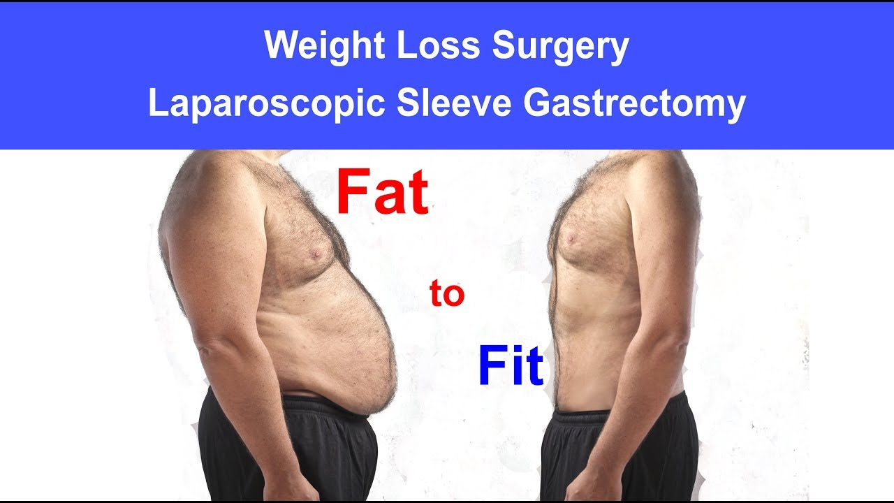 Weight Loss Surgery Laparoscopic Bariatric Surgery Laparoscopic