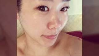 화곡동 피부관리 강서 이지은 레드클럽