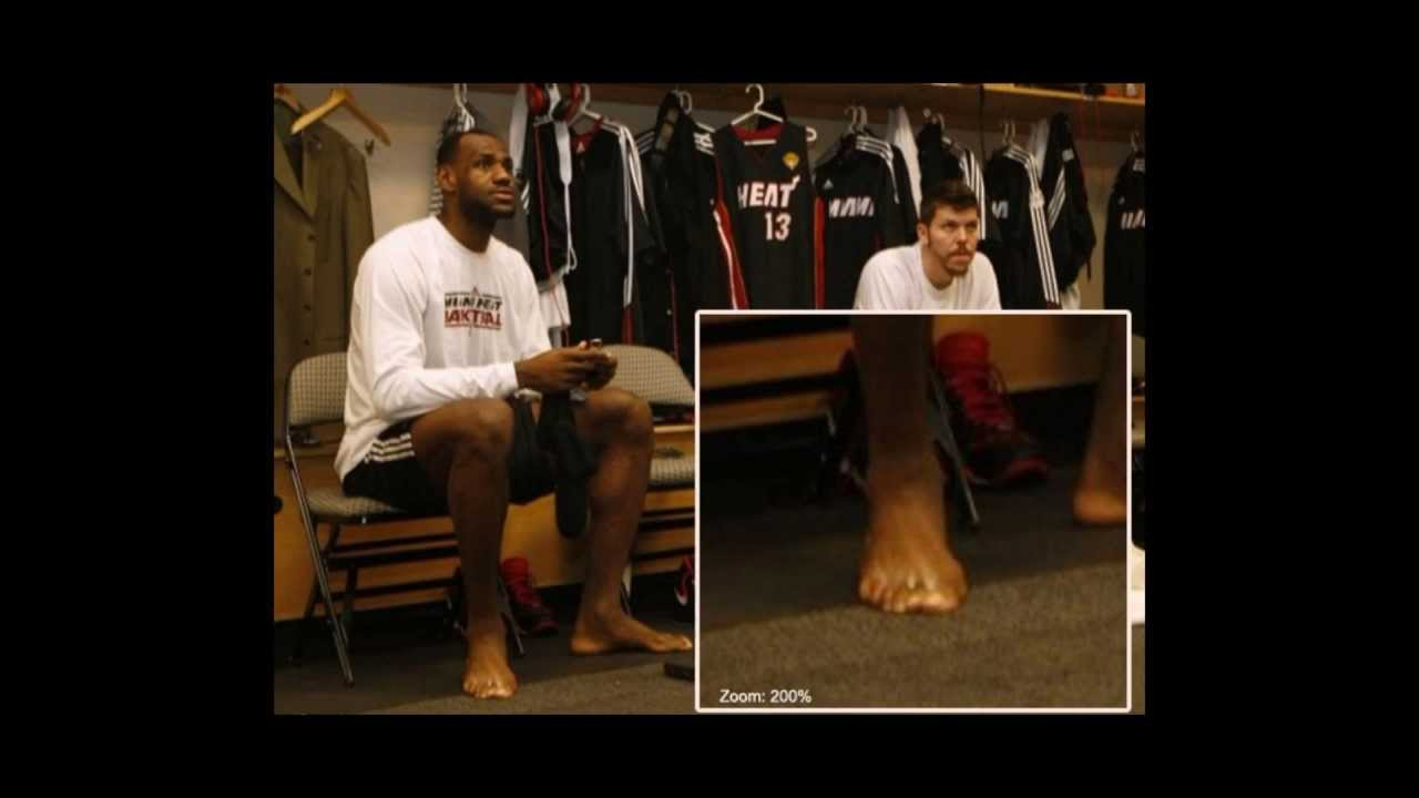 90031c250069a9 Lebron James has a strange foot and the number of his toes decrease ...