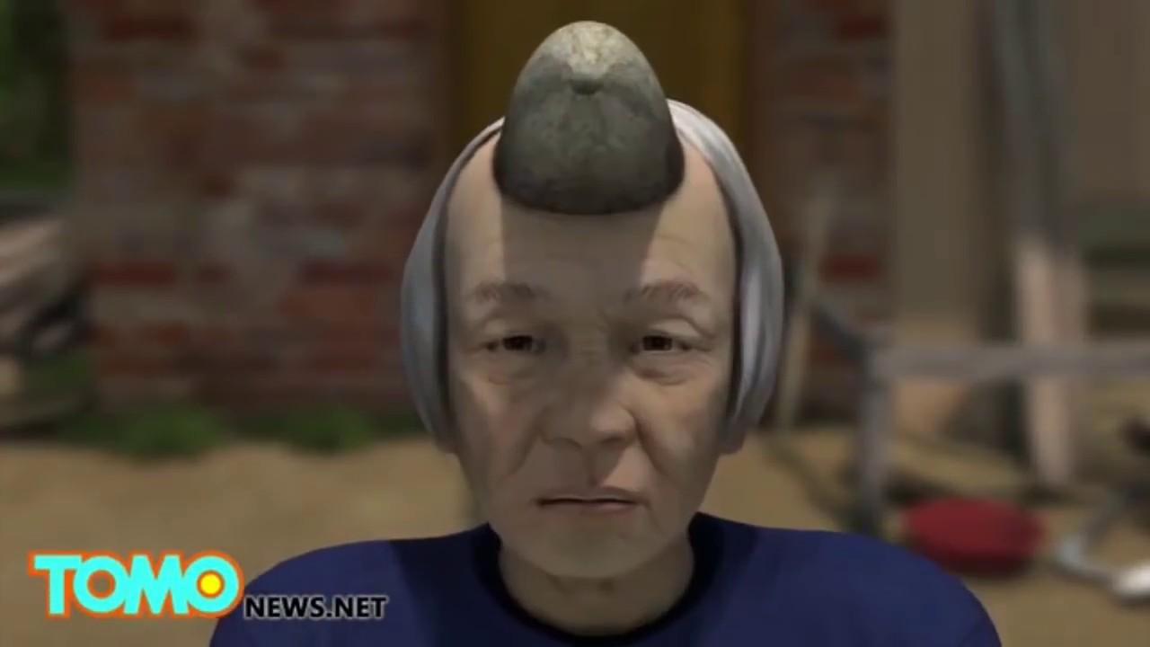 Sebaceous Horns - Real Human Horns - Can Humans Grow Horns? - YouTube