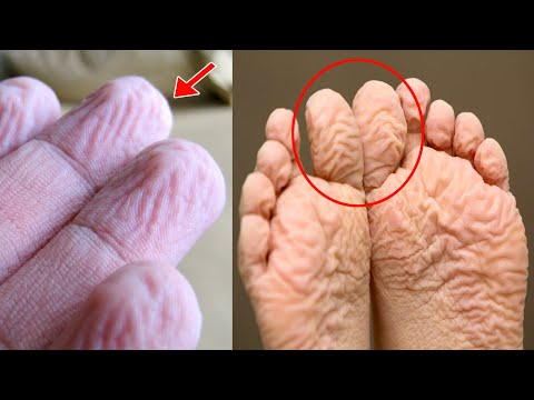 Why Does Your Skin, Fingers, Hands & Feet Wrinkle or Get Pruney in Water? The Reason