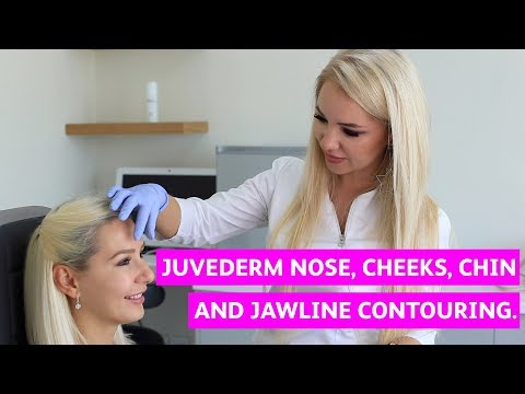 Juvederm nose, cheeks, chin and jawline contouring  Profile