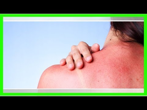 Sonnenbrand Behandeln: Die Besten Natürlichen Hausmittel