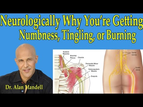 neurologically-why-you're-getting-numbness,tingling,-or-burning-in-arms-or-legs---dr-mandell
