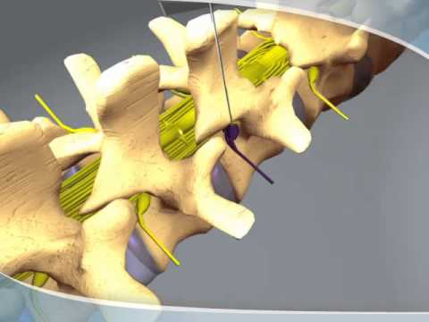 What to expect during a Nerve Root Block at CDI