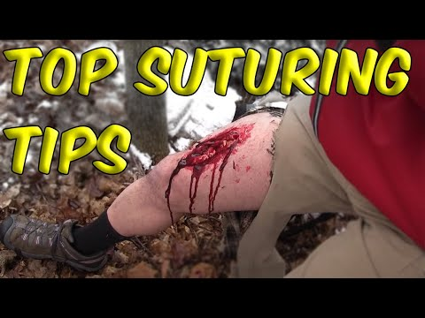 Top Suturing Tips & Common Mistakes