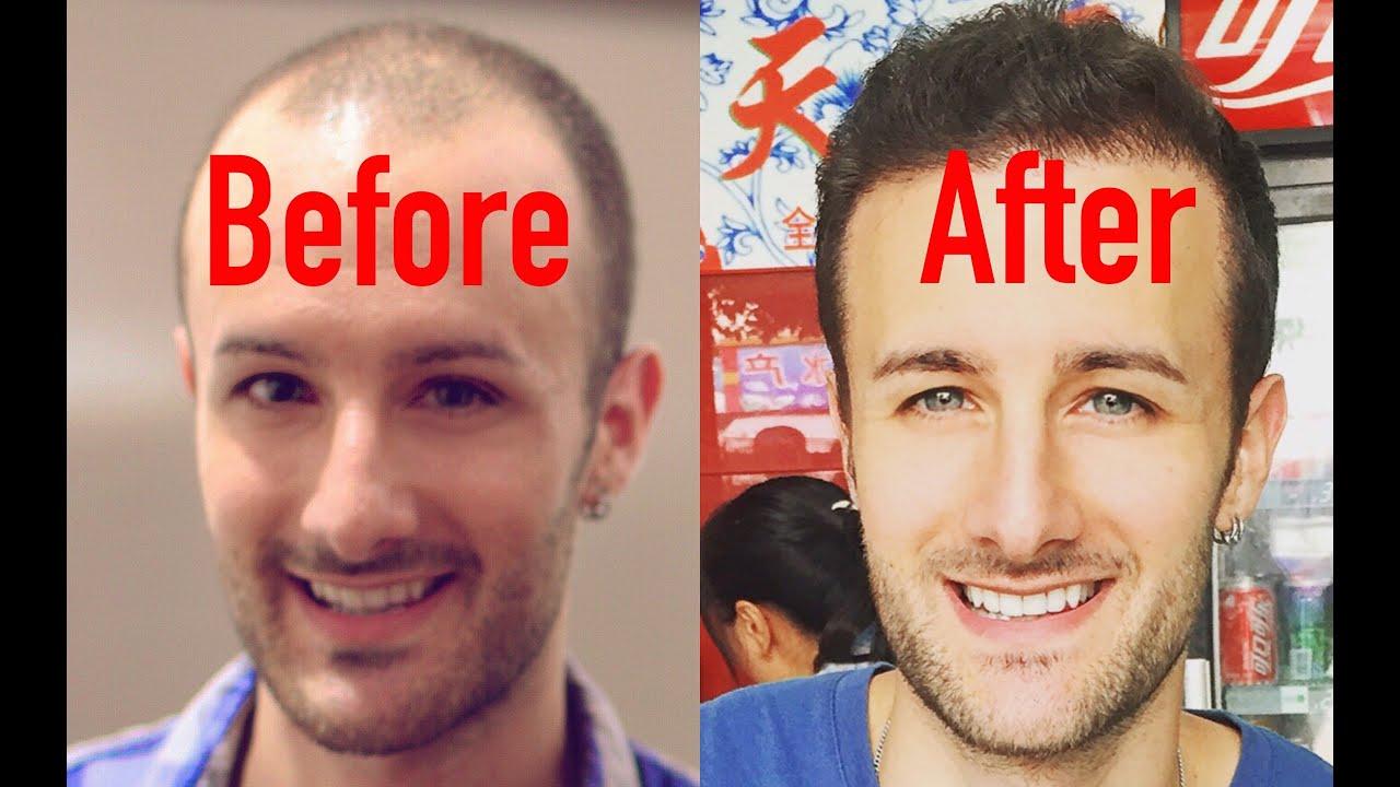 Hair Systems Amp Wigs Vs Hair Transplants Youtube