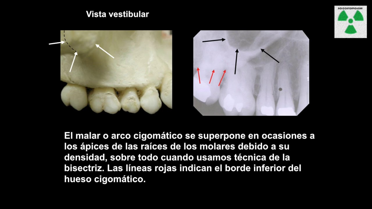 Anatomía radiológica Maxilar y mandibular - YouTube