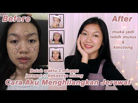 Mencuci wajah merupakan hal yang mudah, tetapi apakah semua orang melakukan hal tersebut? Menurut Majalah You Beauty,....