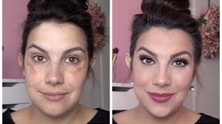 One of emilynoel83's most viewed videos: FULL COVERAGE Makeup for Melasma & Discoloration
