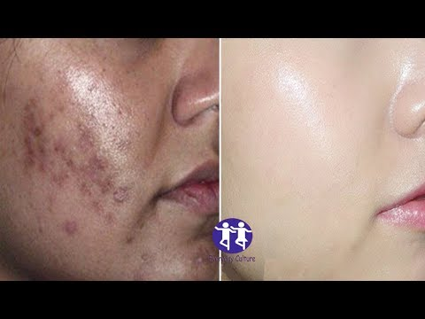 Watch this now in just 5 minutes Remove dark spots,black spots , dark scars , Get spotless fair , s