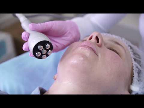Безоперационная подтяжка лица - Процедура RF лифтинга